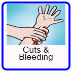 Cuts and Bleeding
